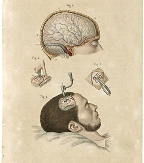 anatomical, anatomy and antique
