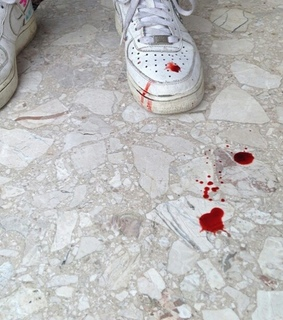 AF1, air force and blood